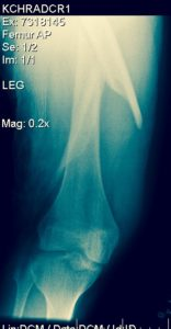 Right Femur